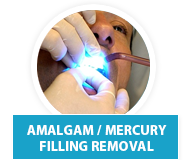 filling cavity sedation