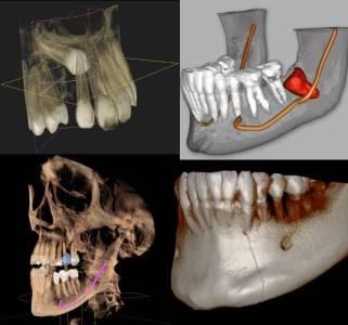3D cone beam x-ray