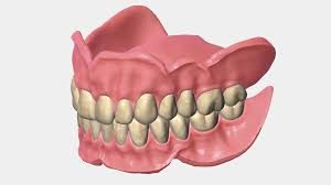 dentures vs all on 4implants sedation