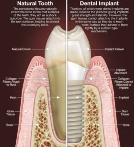 how do implants replace teeth