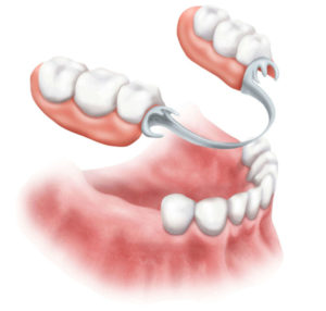 partial denture vs all on four implants sedation