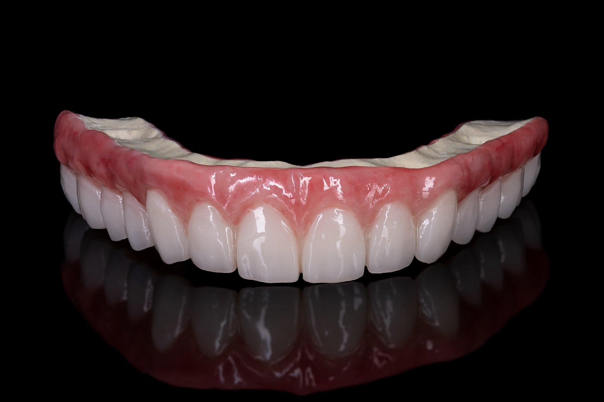 all on 4-6 dental implants